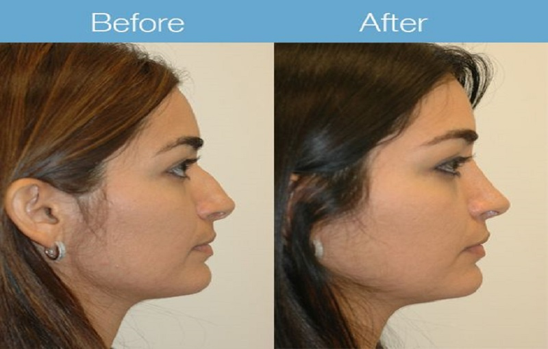 Rhinoplasty after and before